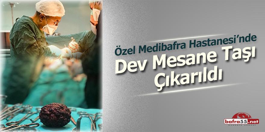 Özel Medibafra Hastanesi'nde Dev Mesane Taşı Çıkarıldı