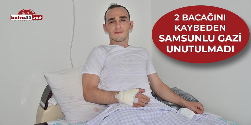 2 bacağını kaybeden Samsunlu gazi unutulmadı