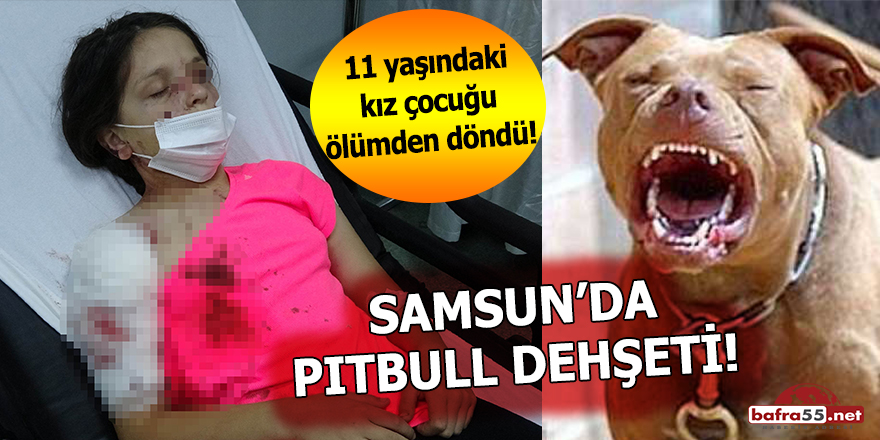 Samsun'da pitbull dehşeti!