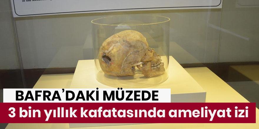 3 bin yıllık kafatasında ameliyat izi